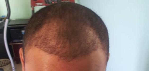 طريقة تكثيف الشعر من الأمام