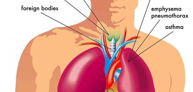 اسباب ضيق التنفس %D8%A7%D8%B3%D8%A8%D
