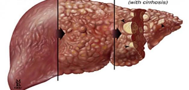 اعراض التهاب الكبد الفايروسي