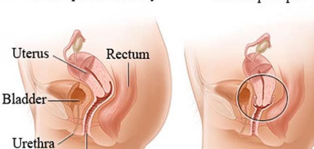 ما هي علامات هبوط الرحم