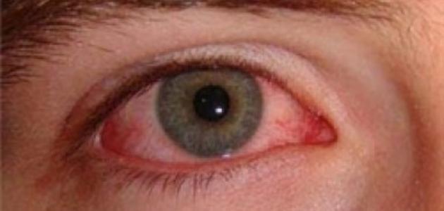 ما هو علاج رمد العين