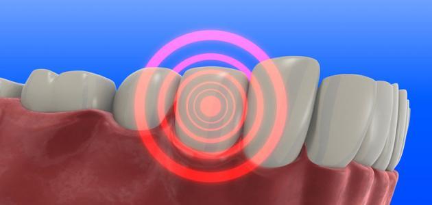 ما هو علاج وجع الأسنان