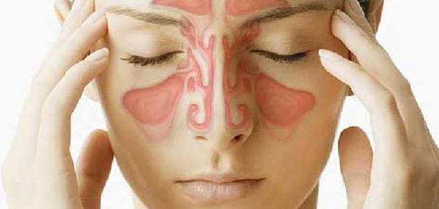 ما هي أعراض الجيوب الأنفية
