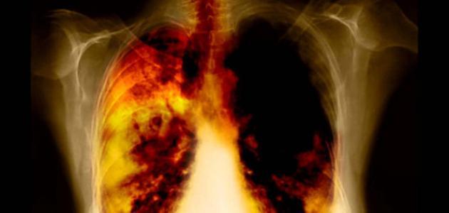 ما هي الأمراض التي يسببها التدخين