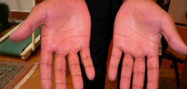 كيفية علاج تعرق اليدين