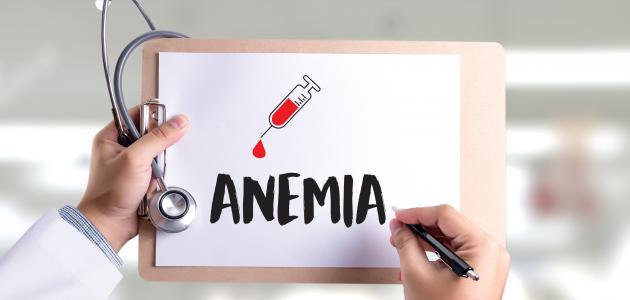 بحث عن فقر الدم