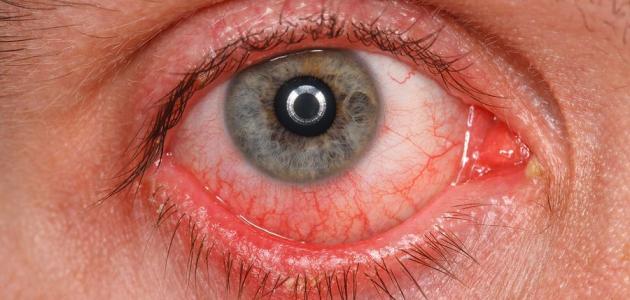 ما هو سبب احمرار العين