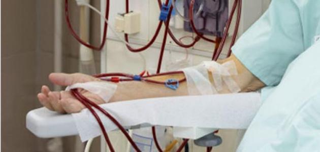 ما هو غسيل الدم