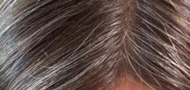 كيف أتخلص من الشعر الأبيض