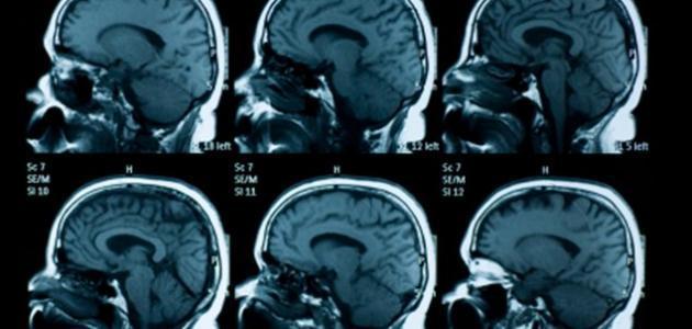 ضمور المخ عند الأطفال حديثي الولادة