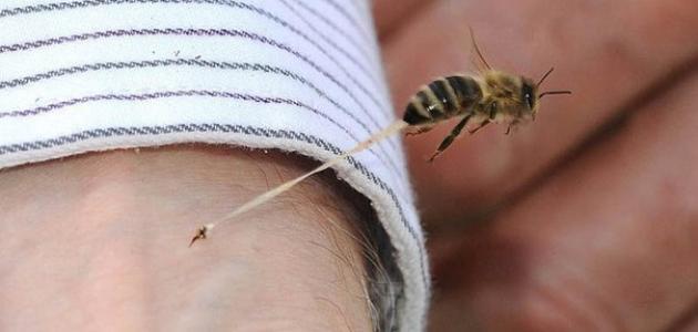 كيف تعالج لسعة النحل
