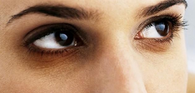 كيف أتخلص من الهالات السوداء تحت العينين