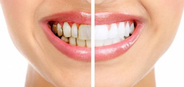 كيف ازيل جير الاسنان