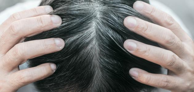 كيف تتخلص من شيب الشعر