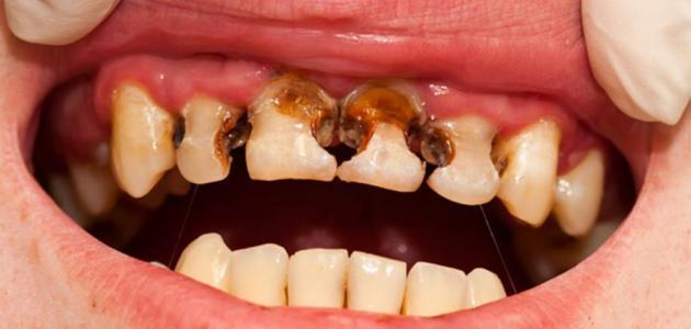 كيف تتخلص من تسوس الاسنان