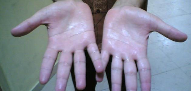 كيف أعالج تعرق اليدين