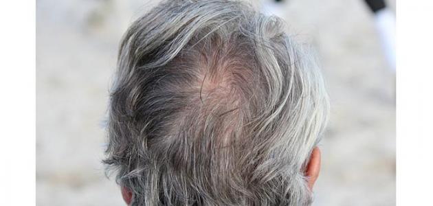 كيف تعالج الشعر الأبيض