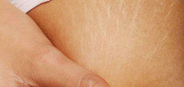 كيف أحافظ على بطني من تشققات الحمل
