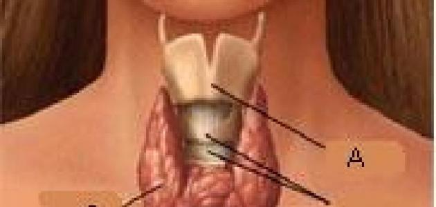 ما هو علاج نشاط الغدة الدرقية