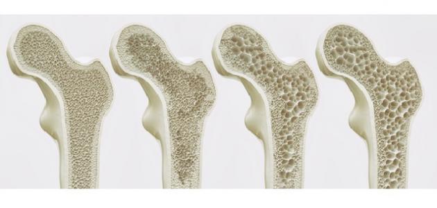 بحث عن هشاشة العظام