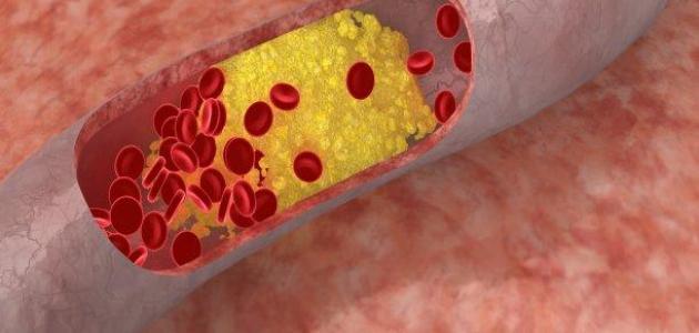 ارتفاع الكولسترول وعلاجه
