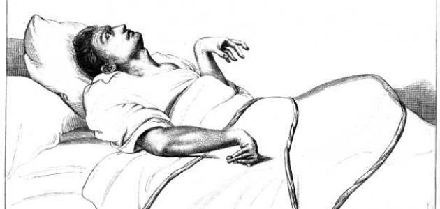 بحث عن مرض الصرع