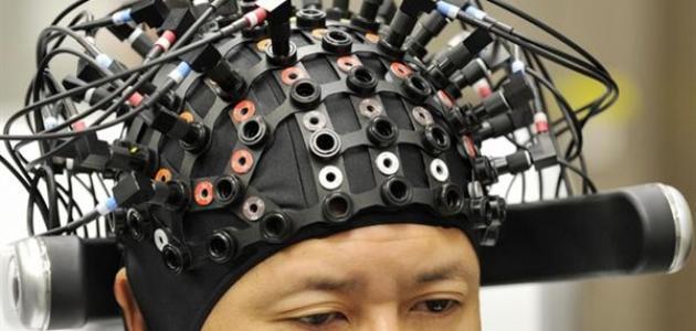 أعراض كهرباء المخ الزائدة