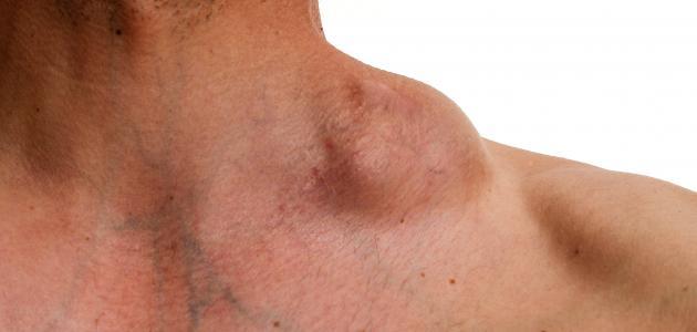 سرطان الغدد الليمفاوية 0