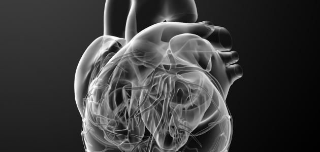 تضخم القلب وعلاجه