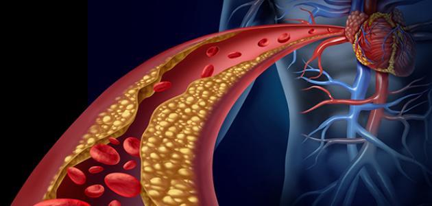 ما هو علاج الكولسترول