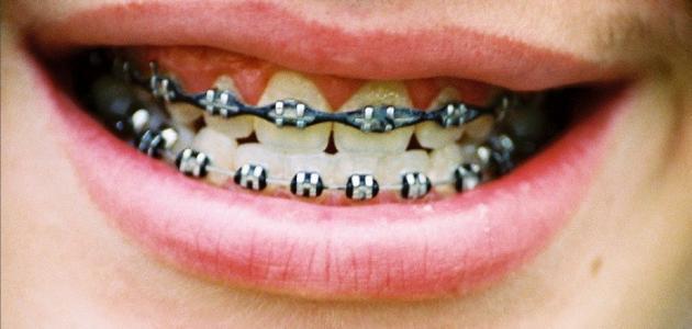 كيف يتم تركيب تقويم الأسنان