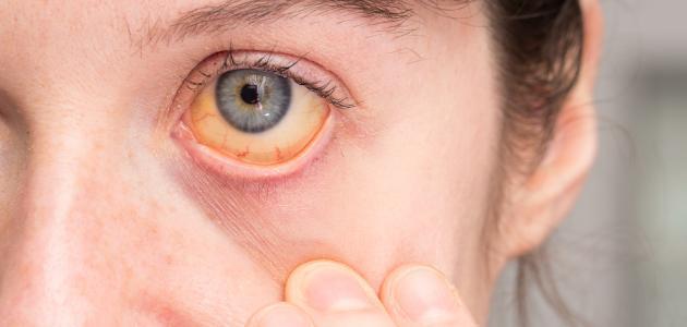 أعراض فيروس سي وعلاجه