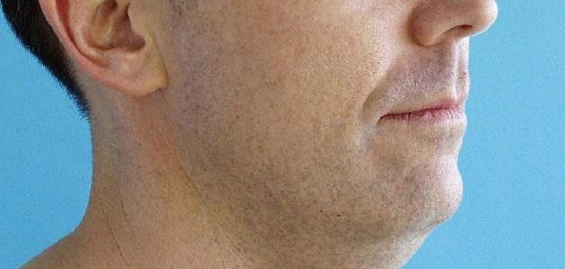 كيف أتخلص من دهون الوجه