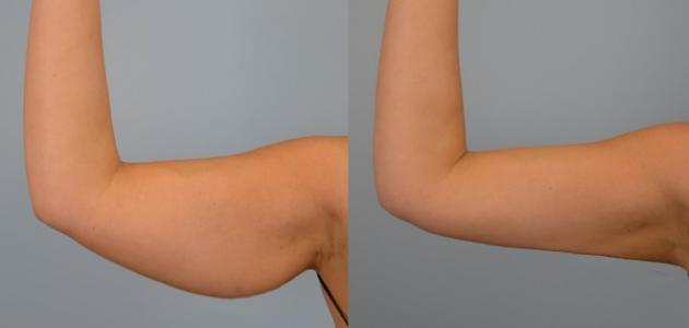 ترهل الجلد بعد فقدان الوزن