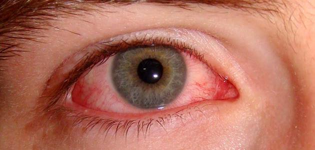 أمراض العين وكيفية الوقاية منها