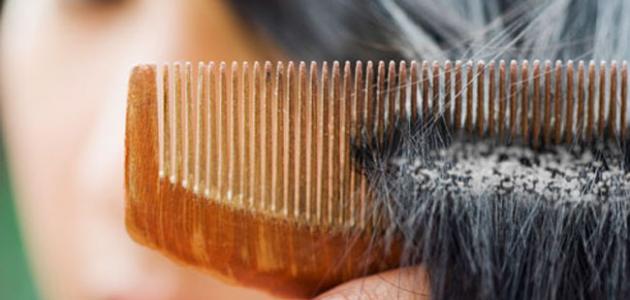 كيف تتخلص من قشرة الشعر