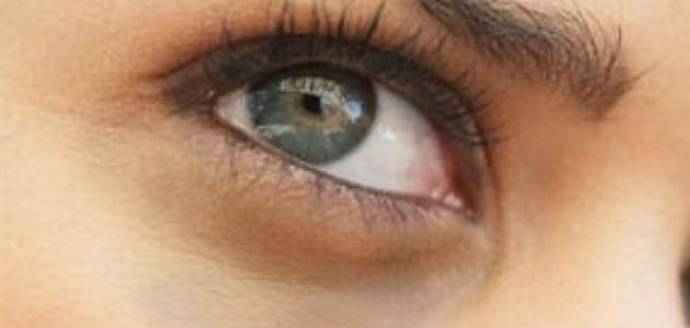 كيف تتخلص من الهالات السوداء تحت العين