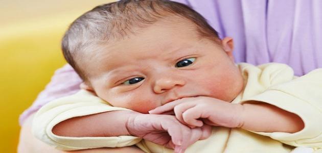 حول العين عند الرضع