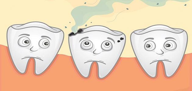 كيف أزيل تسوس الأسنان