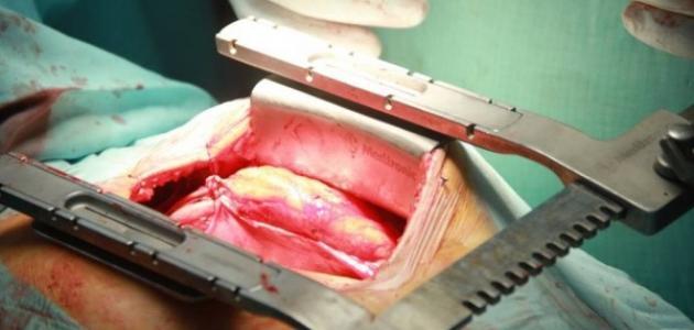 Open Heart Surgery - Gardens Hospital - 3 ...