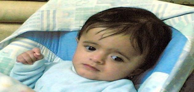 ضمور المخ عند الأطفال وعلاجه