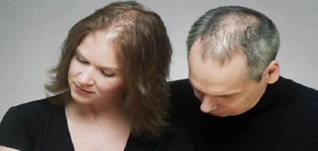 فقر الدم يسبب تساقط الشعر