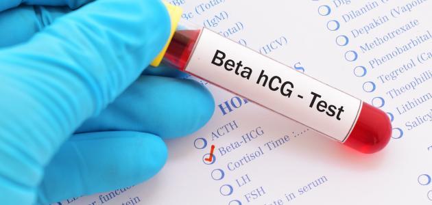 تحليل الدم لكشف الحمل