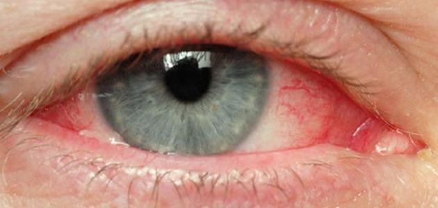 قرحة العين وكيفية علاجها
