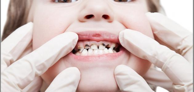 كيف أقضي على تسوس الأسنان