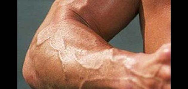 كيف تقوي عصب اليد