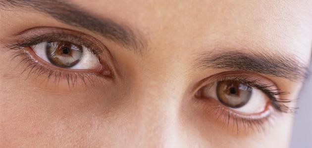 حول العين البسيط وعلاجه