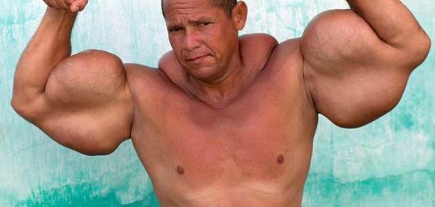 حقن العضلات وما يفعل بالأجسام