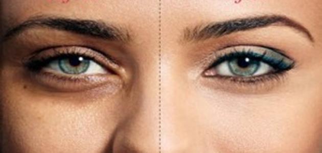 طريقة سريعة للتخلص من الهالات السوداء تحت العين
