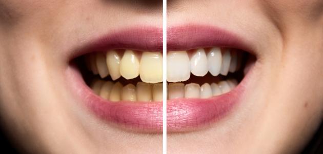 كيفية جعل الأسنان بيضاء - موضوع